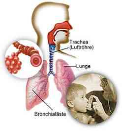 asthma-natural-treatment.jpg