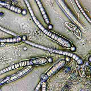 Bacteria cells.