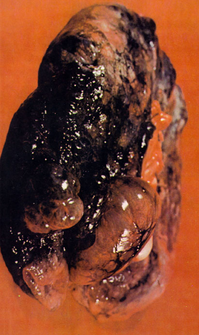 Image of lung with Emphysema.