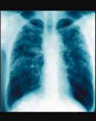 Lung x-ray Asbestosis