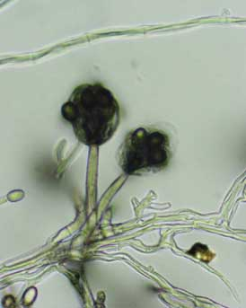 Mold hyphae.